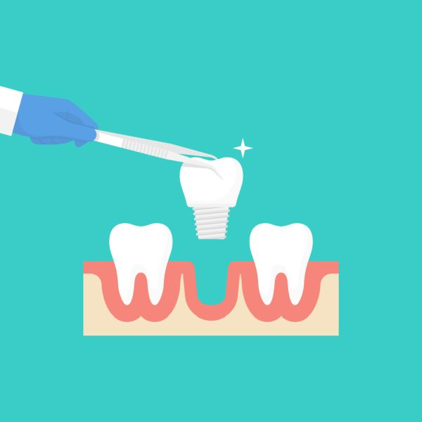 What Are The Different Types Of Implant Restorations?